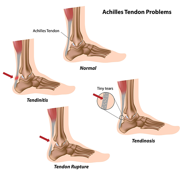 Achilles Tendonitis in Woodside