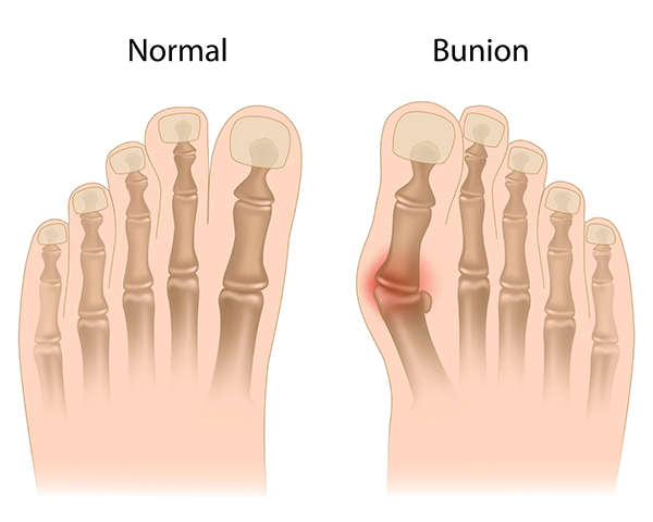 Bunions in Brooklyn